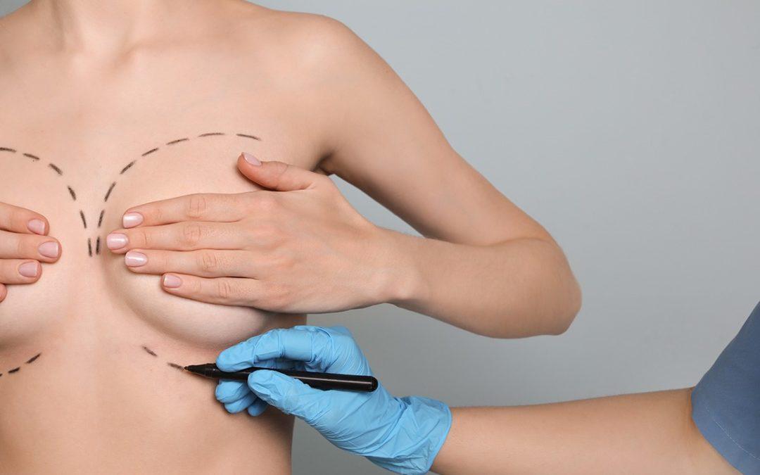 Conseils pour réussir une augmentation mammaire à Lyon