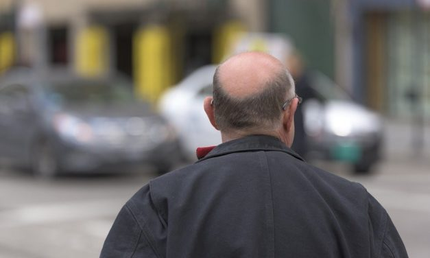 Implant capillaire à Lyon : une solution efficace contre la calvitie